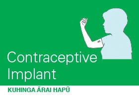 Contraceptive Implant - Pamphlet